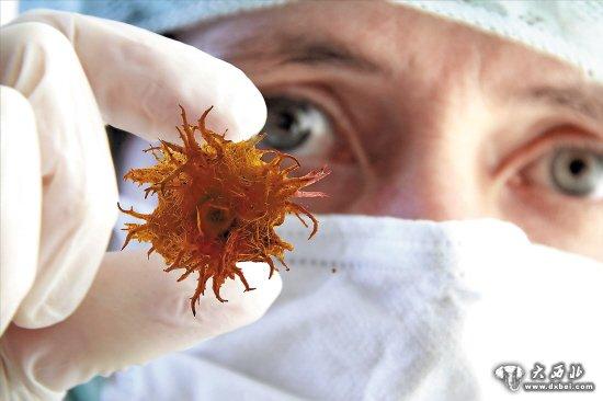 尽管癌症增长在世界范围都是一种趋势,但是,中国和世界其他国家的癌症增长却各有特点。2013年11月2日在中国天津召开的第22届亚太抗癌大会上传出的消息显示,中国每年新增癌症患者占到全球新增的20%以上,肺癌、肝癌、胃癌、食管癌、结直肠癌、宫颈癌、乳腺癌和鼻咽癌这8种癌症死亡人数约占中国癌症总死亡人数的80%以上。亚太地区癌症新增病例占到全球癌症新增病例的45%,死亡人数约占全球癌症死亡人数的一半。肺癌、胃癌和肝癌是亚洲国家最常见的3种癌症。目前,肺癌是亚洲国家面临的最主要癌症。   2013年全国肿瘤